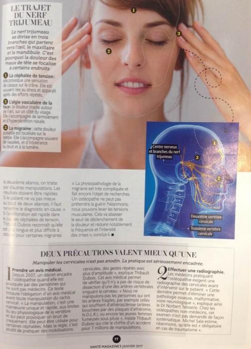 ostéopathie maux de tête 1